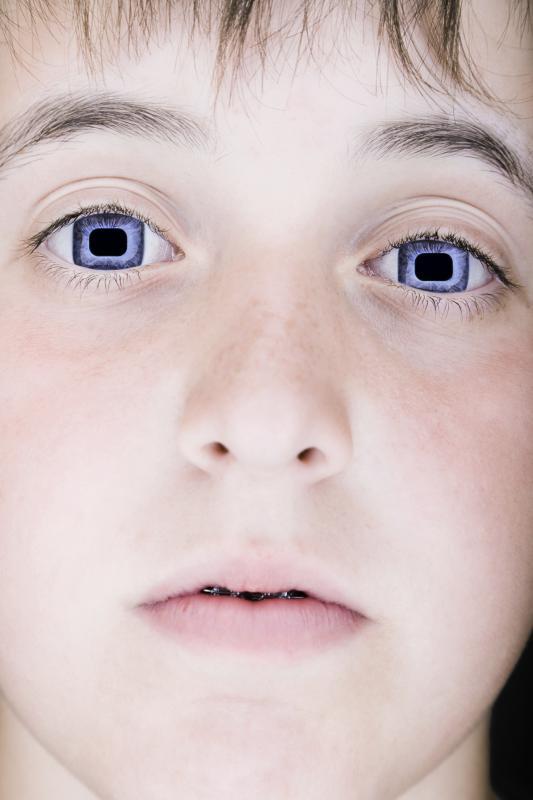 Viereckige Augen